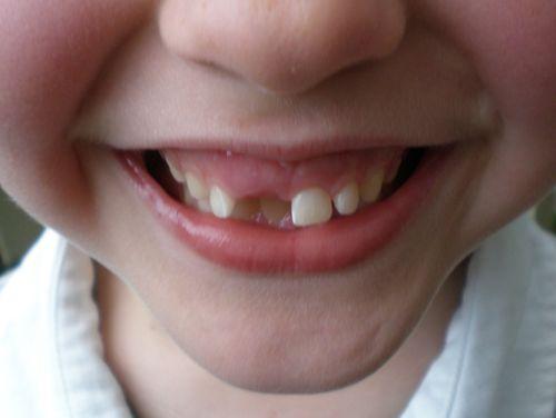Ben's teeth